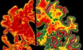Alzheimer's Test Can Detect Disease Decades in Advance | NYL - News YOU Like | Scoop.it