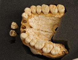 Neanderthal dental tartar reveals evidence of medicine | 21st Century Innovative Technologies and Developments as also discoveries, curiosity ( insolite)... | Scoop.it