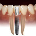 Dental Implants are an Investment Worth Smiling About | Everything You Need To Know About Dental Implants | Scoop.it