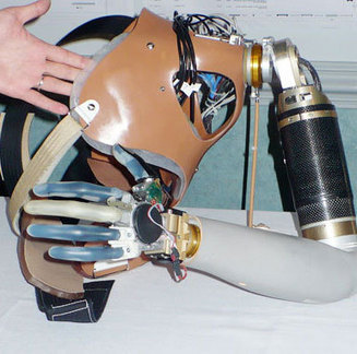 Mechatronics - The Medical Mechatronics of Johns Hopkins's Bionic Arm | biomedikal | Scoop.it