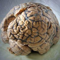 Hirnforschung: Der Ursprung der Klugheit - SPIEGEL ONLINE | Persoenlichkeit & Kompetenz | Scoop.it