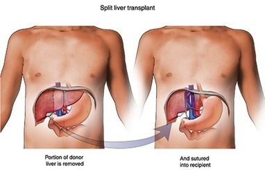 Liver Transplant : What should You Know ~ Indo - Africa Medical Tourism Guide | Medical Tourism | Scoop.it