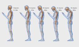 La (mala) postura con el móvil | m-Learning - CUED | Scoop.it