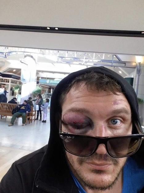 Mitrione suffers horrific eye injury at UFC Boston - MMA.tv | Brazilian jiu-jitsu | Scoop.it