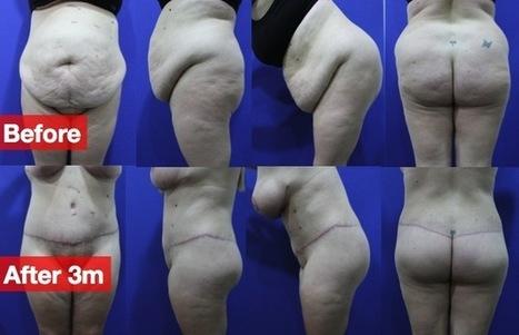 liposuction cost | DrTimvlog | Scoop.it