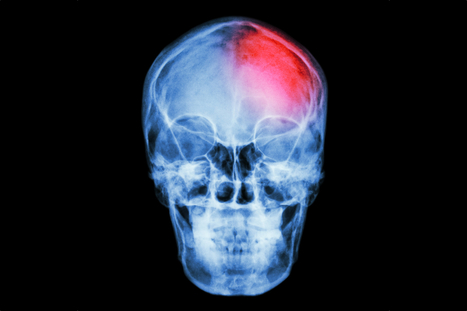 Concussions and Cognitive Skills: What's the Impact?   Human Insight   Scoop.it