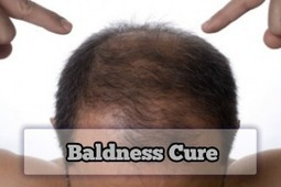 Your Must-Know Guide to Baldness Cure | Baldness Cure | Scoop.it