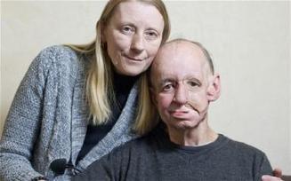Cancer survivor gets his face and life back, thanks to 3D printing   Det første scoop   Scoop.it