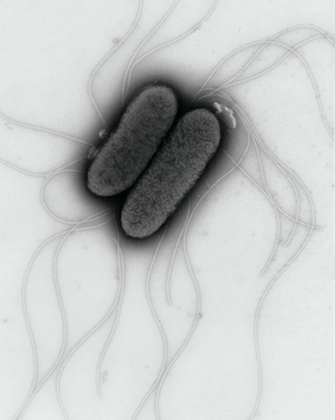 How Salmonella synchronises its invasion plan   Institute of Food Research   Institute of Food Research News   Scoop.it