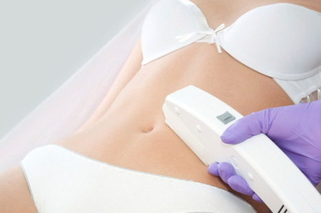 Is Laser Hair Removal Permanent? - News - Top lipo laser   Laser hair removal   Scoop.it