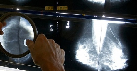Artificial Intelligence Reads Mammograms With 99% Accuracy | Tech Trends and Innovation Impacting Global Higher Education | Scoop.it