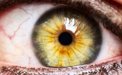 ¿Se puede prevenir el glaucoma - El Sitio de Salud Visual / Oftalmología | El cuidado de los ojos y de la visión | Scoop.it