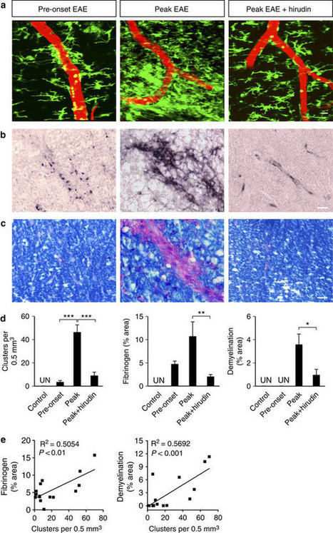 Fibrinogen-induced perivascular microglial clustering is required for the development of axonal damage in neuroinflammation : Nature Communications : Nature Publishing Group | MS Cure News | Scoop.it