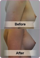 Breast implants Sydney, Breast Augmentation, Breast Reduction, Breast Specialist | breast implants cost sydney | Scoop.it