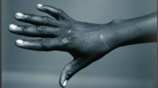 Helping Victims of Torture | The Fight Against Torture | Scoop.it