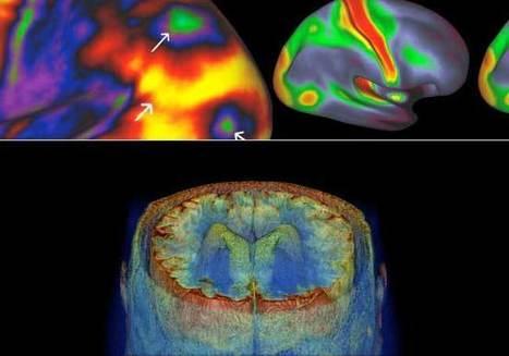 IntraMed - Tecnología - Nuevo mapa cerebral identifica 97 regiones | Ingeniería Biomédica | Scoop.it