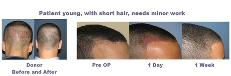 Looking For Effective Hair Loss Transplant Clinic-Hair's Only Solution | Hair's Only Solution | Scoop.it