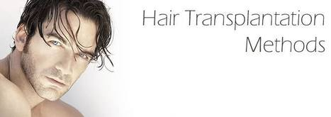 Things should be paid attention after Hair Transplantation | Hair Transplantation | Scoop.it