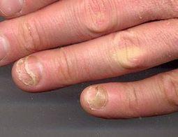 How to Repair Split Nails? | Healthy Tips | Pinterest | Healthy Tips | Scoop.it