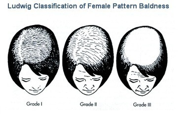 Best Male pattern baldness | Hair transplant in india | Scoop.it