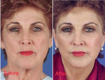 Face Lift in Dubai   Dubai Cosmetic Surgery   Scoop.it