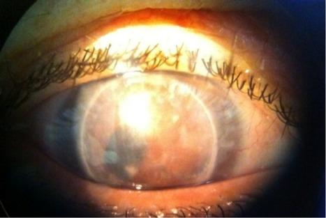 Trasplante corneal por traumatismo - Luis Cornejo | Casos de óptica y optometria | Scoop.it