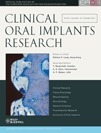 Anti-infective surgical therapy of peri-implantitis. A 12-month prospective clinical study - Heitz-Mayfield - 2011 - Clinical Oral Implants Research   Implant Dentistry   Scoop.it