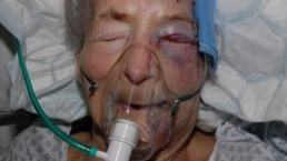 Arrests in beaten pensioner case | Race & Crime UK | Scoop.it