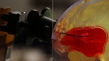 Blood clots could be sucked out of the brain by a robotic device   Longevity science   Scoop.it