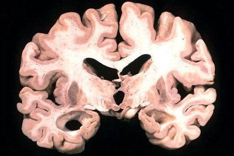 Fungal Infections Linked to Alzheimer's Disease | Applied Neuroscience | Scoop.it