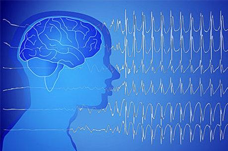 Neuronaute, pour mieux diagnostiquer la crise d'épilepsie | Buzz e-sante | Scoop.it