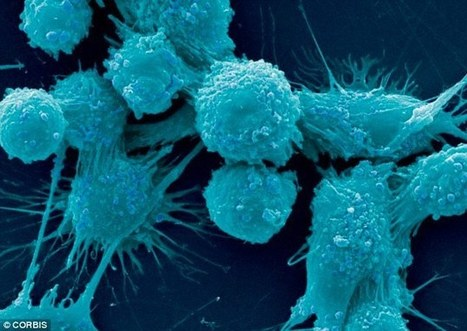 Is exercise the secret to beating prostate cancer? | EIM | Scoop.it