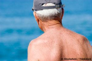 Increase in Melanoma Skin Cancer NOT Caused by Sun Exposure | Issues for the Writer | Scoop.it