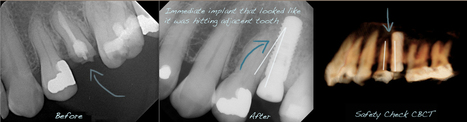 Case of the month: Dental implant & CBCT | Dental Implants | Scoop.it