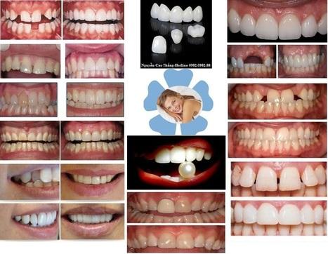 Răng sứ thẩm mỹ | Hoc thanh nhac | Scoop.it