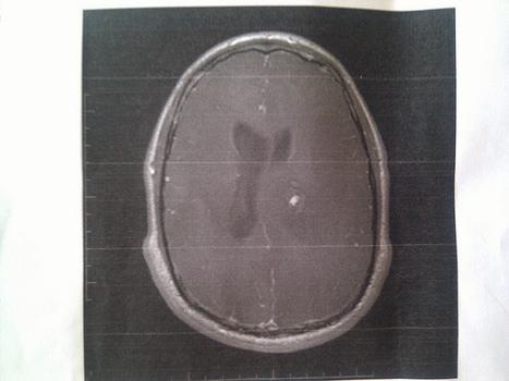 Tumor Cerebral: una patología compleja que vale la pena conocer | Lectura para Momentos de Ocio | Neurocirugía Madrid | Scoop.it