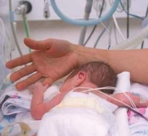 AUTISME: Les enfants prématurés ont 5 fois plus de risque | L'autisme | Scoop.it