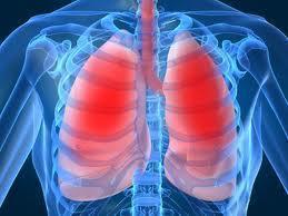 Anti-acid treatment for idiopathic pulmonary fibrosis. | idiopathic pulmonary fibrosis | Scoop.it