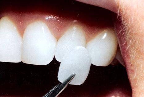 Faccette dentali per un sorriso più accattivante   Viso Giovane [senza bisturi!]   Scoop.it