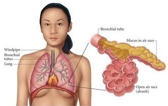 Perbedaan Pneumonia dan TBC wajib diketahui | AJENG HERBAL | Scoop.it