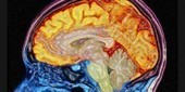 Early Signs of Alzheimers | Sanborn Adult Day Center | Scoop.it