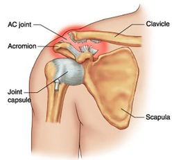 What Are AC Joint Arthritis and Suprascapular Nerve Compression?   Health & Wellness   Scoop.it