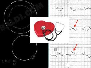Objet connecté ou électroménager et pacemaker: y a-t-il un danger?   Hightech, domotique, robotique et objets connectés sur le Net   Scoop.it