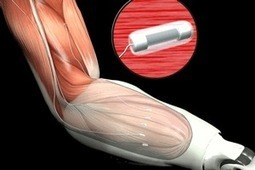 DARPA : les prothèses « bioniques » ne sont plus de la science-fiction | Coup de coeur, coup de rire | Scoop.it
