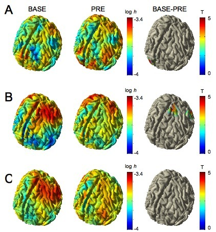 Node Accessibility in Cortical Networks During Motor Tasks | Network science to explore the brain | Scoop.it
