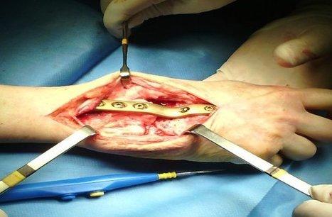 Vídeoblog: Artritis reumatoide en la mano de mujer | Clínica CEMTRO | Scoop.it