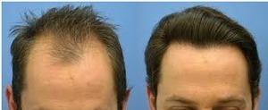 Hair Transplant Procedure | Hair Treatments | Scoop.it