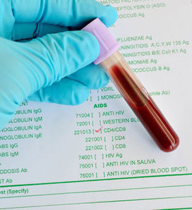 What's the Next Big Question in HIV Treatment? Is Measuring CD4 Enough? | HelpHiv | Scoop.it