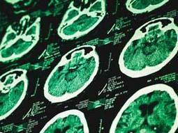 Neurotransmitter Linked to Post-Traumatic Stress | Addiction Recovery | Scoop.it