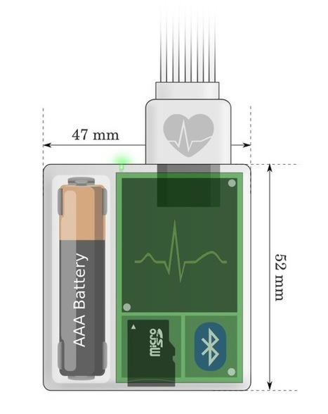 open source electrocardio&shy;graphy<br/>diagnostic devices should be accessible and affordable for everyone | Electronique et Instrumentation Biom&eacute;dicales | Scoop.it